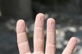 Pse rrudhosen gishtat kur qëndrojmë gjatë në ujë?
