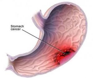 Artikujt që parandalojnë fryrjen e stomakut