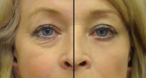 Ja si ti parandaloni rrudhat përreth syve