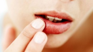 Ja zgjidhja buzët e plasaritura dhe të çara