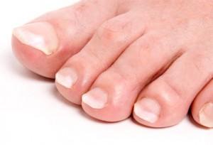 Sëmundja e gishtave të këmbeve