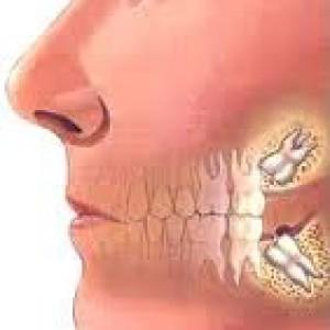 Ja pse duhet të hiqni dhëmbin e pjekurisë