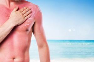 5 mënyra për trajtimin e djegieve nga dielli