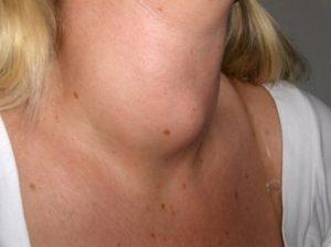 Ilaçet natyrale për gjëndrat tiroide